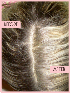 Tested Before After Pics All Natural Hair Regrowth